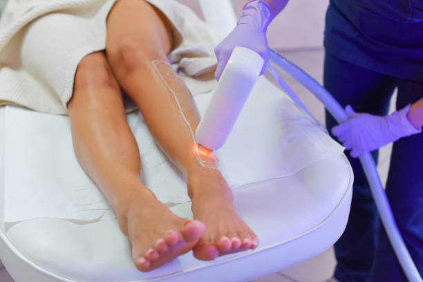Let's Talk about Laser Hair Removal